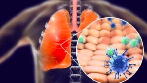 Hỏi đáp để chủ động phòng chống dịch bệnh viêm đường hô hấp cấp do virus Corona mới