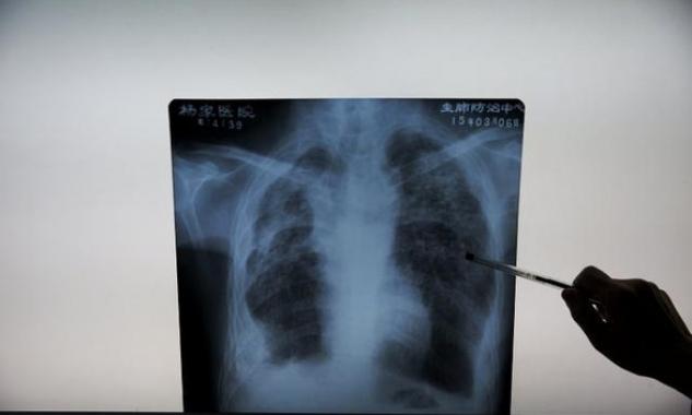 AI phát hiện COVID-19 từ ảnh X-quang phổi nhanh gấp 10 lần chuyên gia